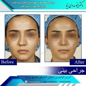 جراحی بینی