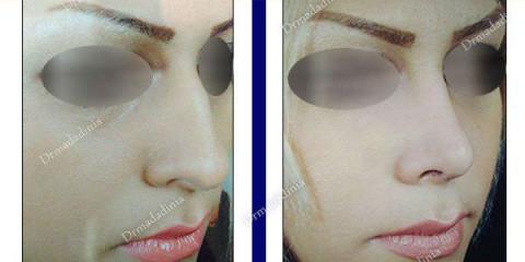 بهترین جراح بینی اهواز