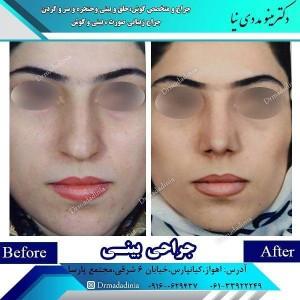 جراح بینی در اهواز