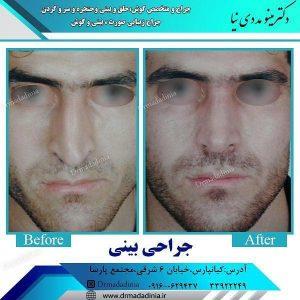تفاوت جراحی بینی آقایان و بانوان
