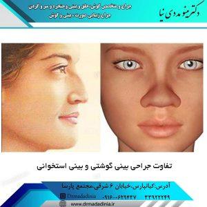 تفاوت جراحی بینی گوشتی و بینی استخوانی
