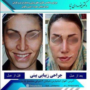 جراح بینی آبادان