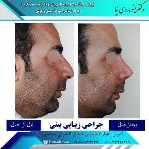 جراحی بینی اهواز