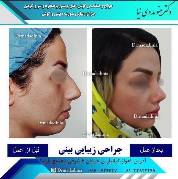 جراح بینی اهواز