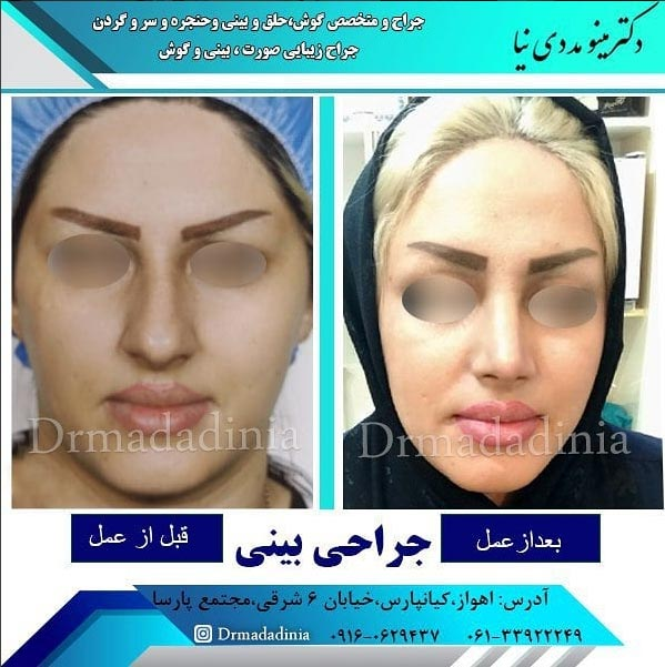 جراحی بینی در اهواز