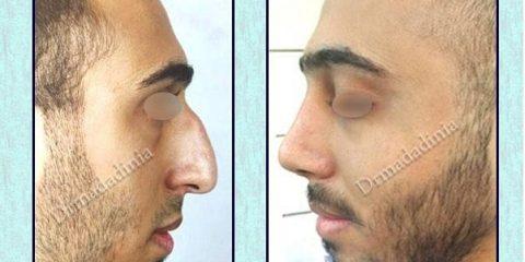 جراح بینی خوب اهواز
