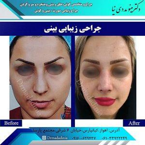 جراحی بینی در آبادان
