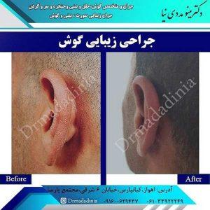 کوچک کردن گوش ها