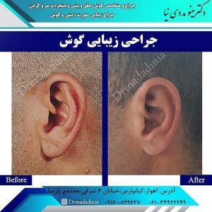 جراحی گوش اهواز