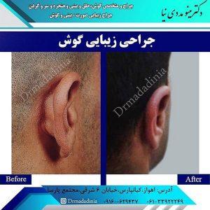 کوچک کردن گوش با جراحی